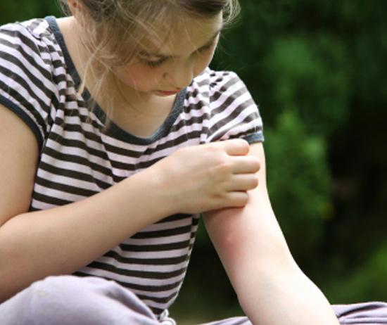 Лечение после укусов насекомых
