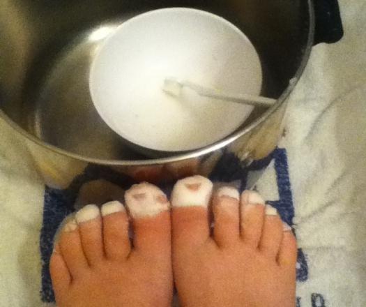 Грибковое поражение ногтей у детей лечение