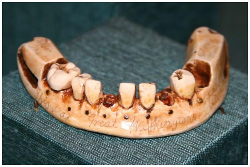 Зубы вырывались у погибших в бою солдат и продавались для протезирования интересное, прошлое, стоматологи, ужас, факты