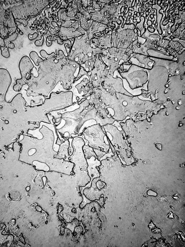 1. Слезы от смеха исследование, микроскоп, слеза
