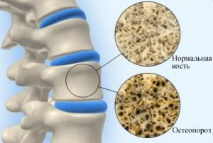 Как лечить остеопороз костей народными средствами