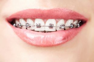 Как ухаживать за зубами в брекетах