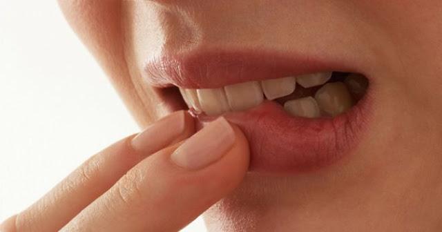 Стоматит – причины и лечение