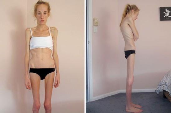 анорексички до и после фото