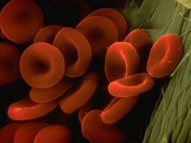 вот так выглядят артерия и кровь