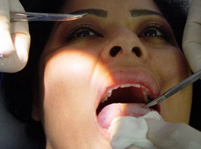 Заплатка на язык для похудения