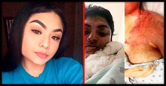 18-летнюю девушку изувечили кислотой за то, что встречалась с темнокожим парнем
