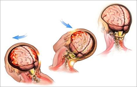 Чем опасно сотрясение мозга
