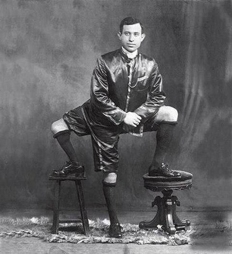 Невероятно, но факт — человек с тремя ногами…