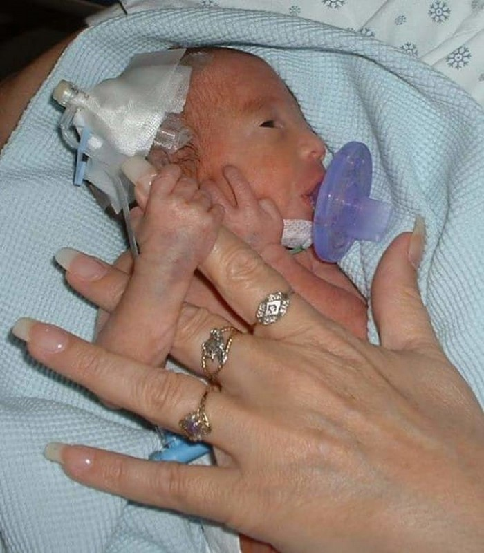 Ее сын родился семимесячным.…