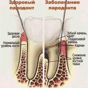 Пародонтит: лечение лекарственными растениями
