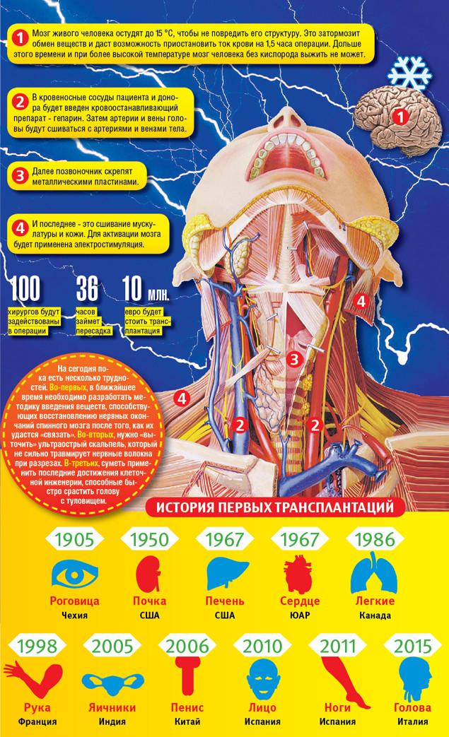 Россиянин, согласившийся на первую в мире пересадку головы Валерий Спиридонов, медицина, пересадка головы