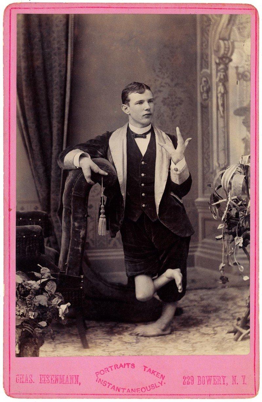 Молодой человек с клешнями вместо рук интересное, прошлое, фото, цирк