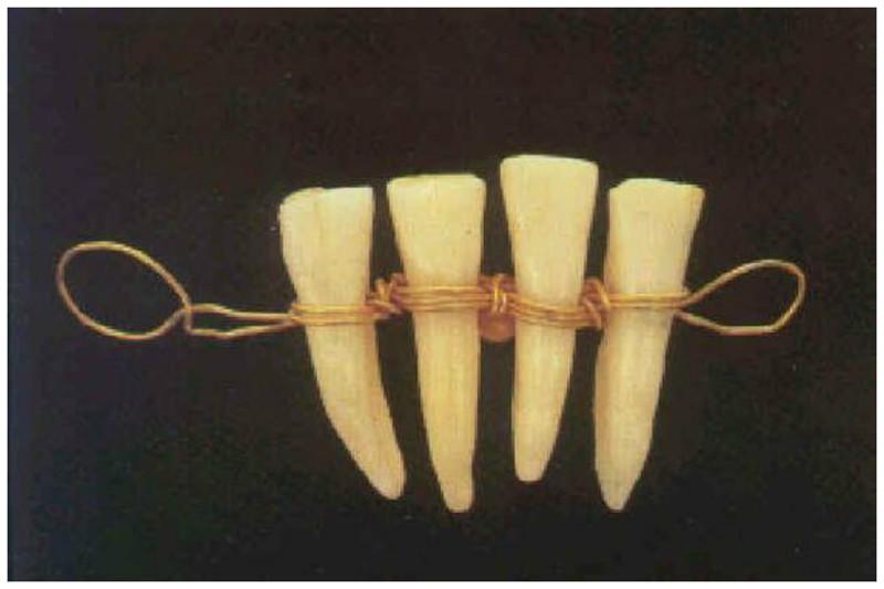 Для протезов использовались также зубы животных. Четвертый век до н.э. - зубы животного на золотой ленте, предназначенные для протезирования интересное, прошлое, стоматологи, ужас, факты
