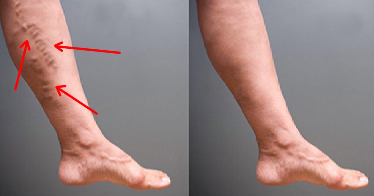 Всего 1 ложка этой смеси избавит от варикоза и сосудистой сетки на ногах