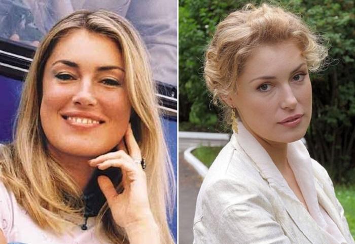 Фото марии шукшиной до и после пластики 108