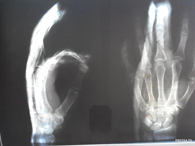 200 фактов о реальной травматологии
