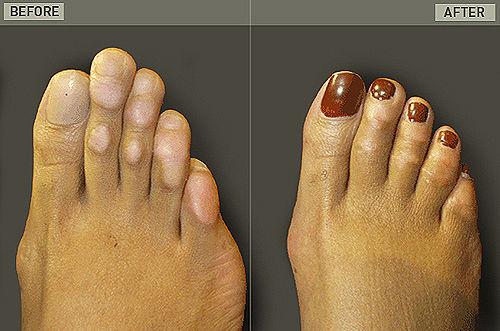 Хирургия Золушки — операция по укорачиванию пальцев ног