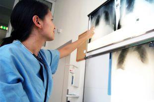 Что такое хроническая обструктивная болезнь легких?