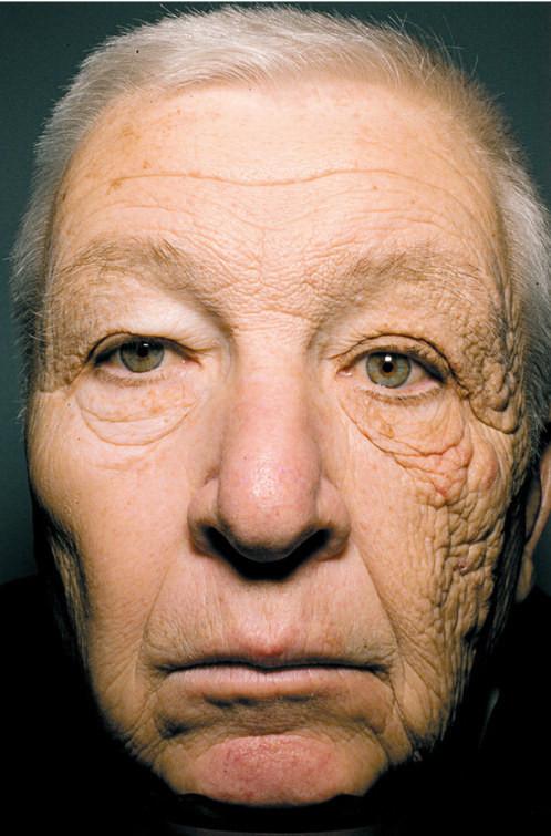 10. Миф: Если вы постоянно загораете, у вас будет меньше морщин безопасность, загар, лето, солнце