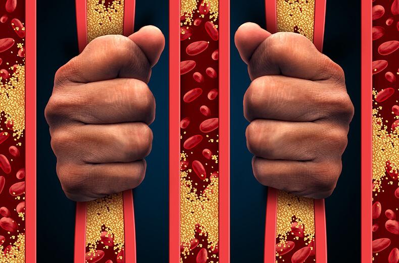 Мифы о холестерине и атероск…