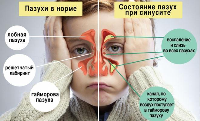 Советы отоларинголога. Гайморит — лечение без проколов
