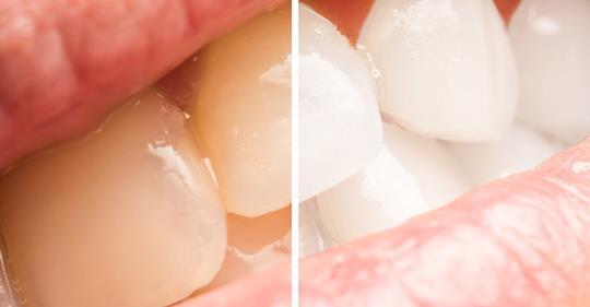5 простых способов отбеливания желтые зубов натуральным способом