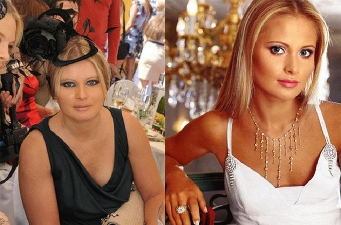 10 российских знаменитостей до и после того, как им удалось расстаться с лишними килограммами