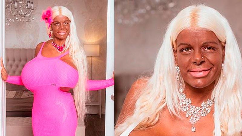 Модель потратила $60 000 на изменение цвета кожи и самую большую грудь в Европе