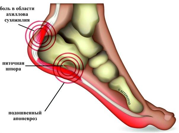 Язва желудка - Как вылечить в