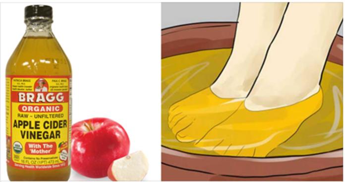 Как уксусного кислоту применять для грибка ног