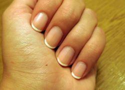 Почему появляются белые пятна на ногтях рук у детей
