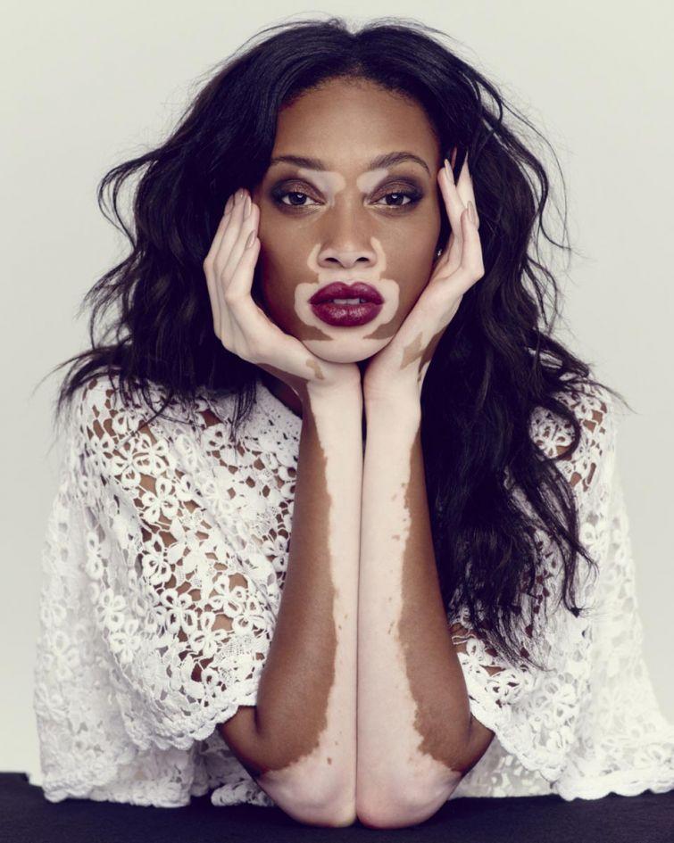 12 нестандартных моделей, которые смогли перевернуть мир моды благодаря своей внешности