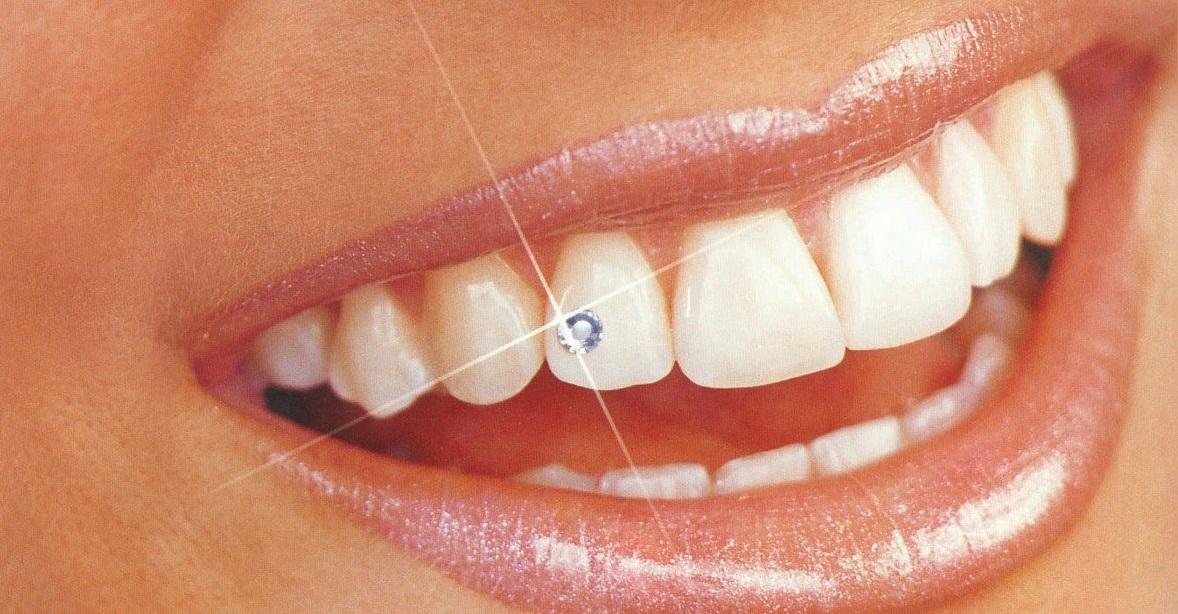 Драгоценные камни для зубов
