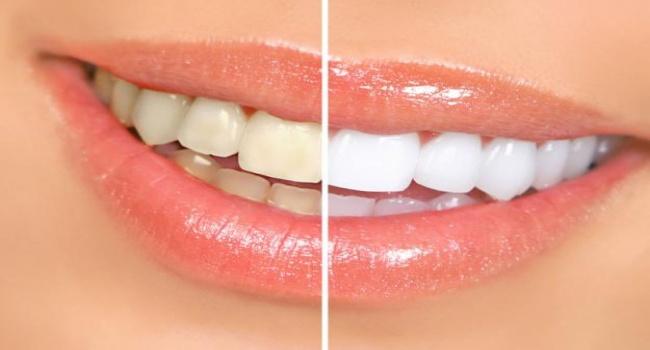 Отбеливаем зубы!