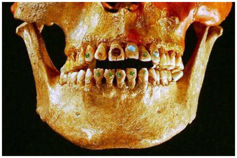 Нефритовые инкрустационные зубы. Уже тогда стремились к зубному украшательству, правда насколько это было травматично, видно по фото интересное, прошлое, стоматологи, ужас, факты