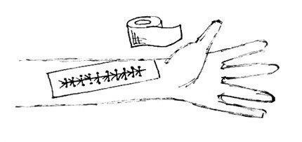 Как зашить рану