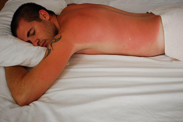 солнечные ожоги фото 3 степени