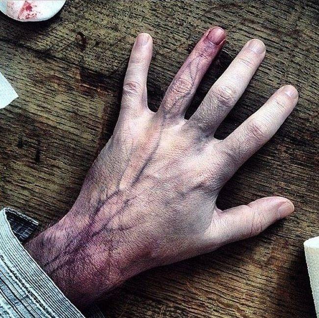 16 дней из жизни укушенного зомби