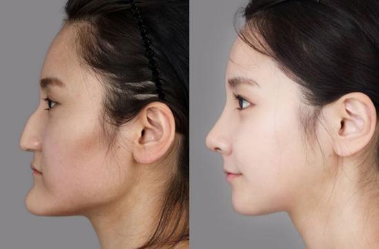 Чудеса пластической хирургии Южной Кореи: до и после