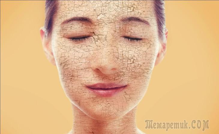 Заболевание кожи ихтиоз…