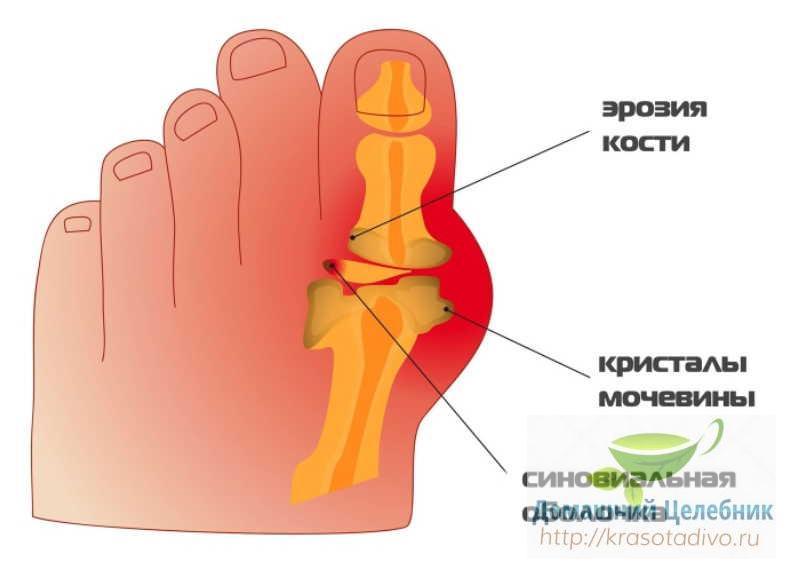 Как вылечить косточку на ног…