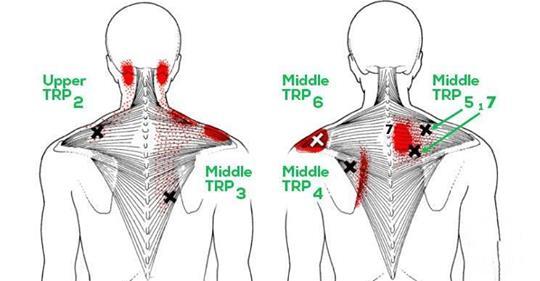 Попробуйте эти 10 растяжек, чтобы облегчить жесткость в шее, плечах и боль в верхней части спины!