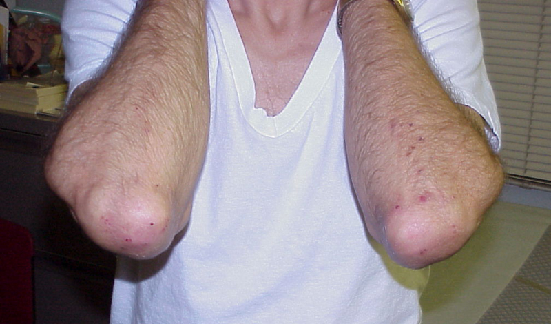 Зуд и сыпь на коже Болезненные высыпания на коленях, локтях и коже головы выглядит точь-в-точь как экзема. Однако, это может быть куда более серьезной проблемой. Целиакия, аутоиммунное заболевание, вызывает именно эти симптомы. Может быть, вам придется навсегда отказаться от содержащих глютен продуктов.