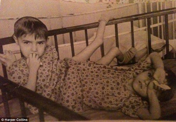 История сиамских близнецов Маши и Даши Кривошляповых: издевательские эксперименты советской науки