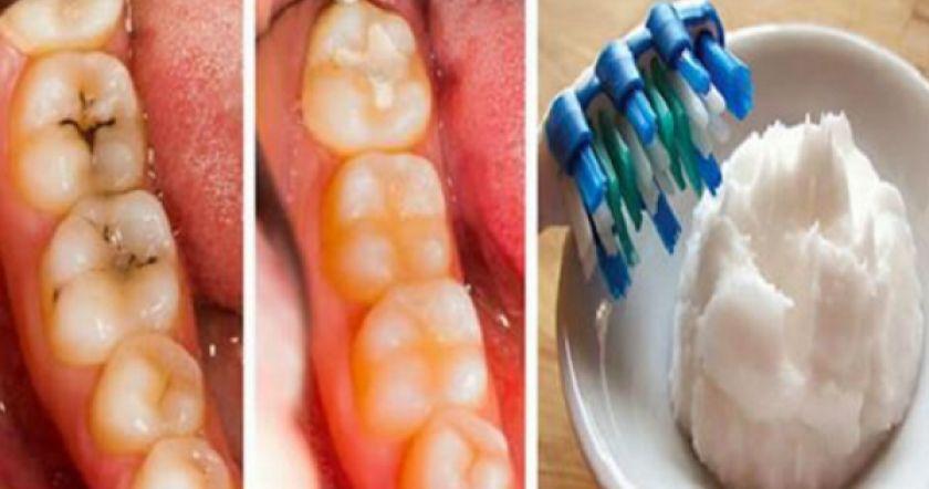 Картинки по запроÑу 5 шагов Ð´Ð»Ñ Ð»ÐµÑ‡ÐµÐ½Ð¸Ñ Ñ€Ð°Ñпада зубов и кариеÑа