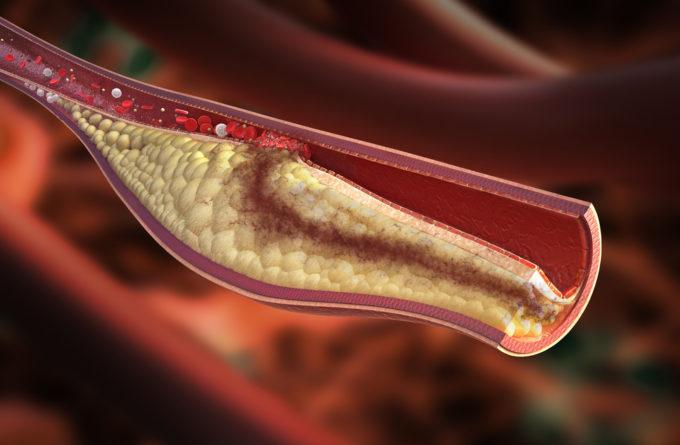 Что такое плохой и хороший холестерин