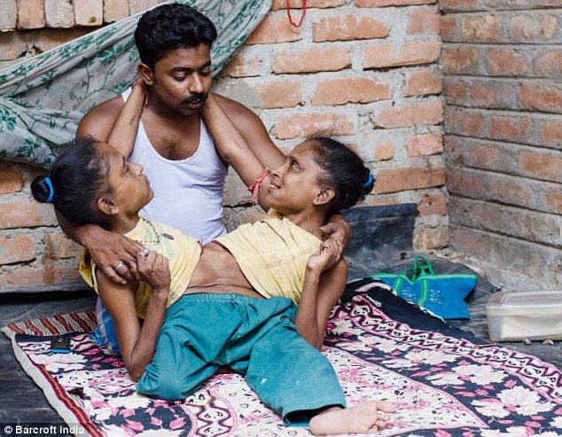 В Индии сиамские близнецы полюбили одного мужчину