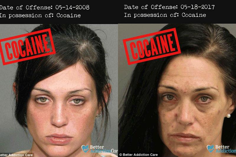 Лица наркозависимых до и после: как запрещенные вещества влияют на внешность