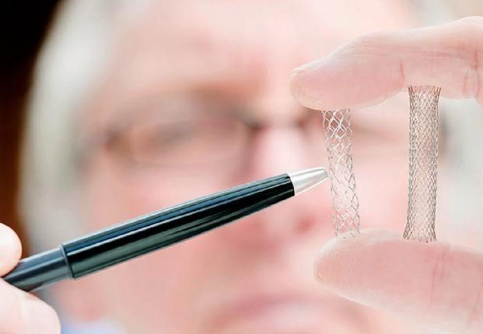Имплантаты для изменения тембра голоса хирургическим путем